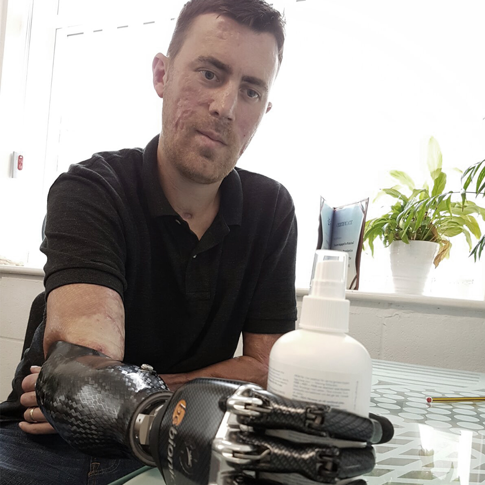 Dad Receives State-of-the-Art Bionic Hand